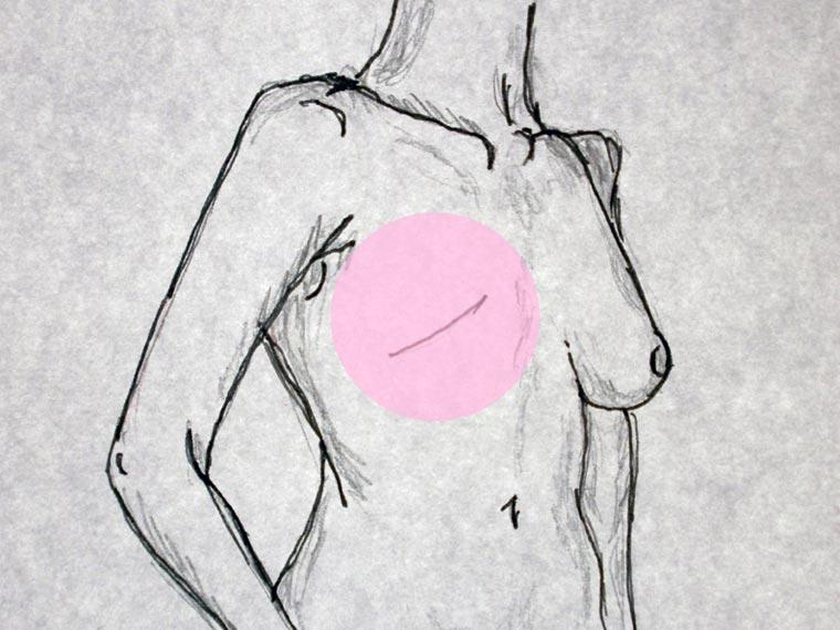 mastectomie bis